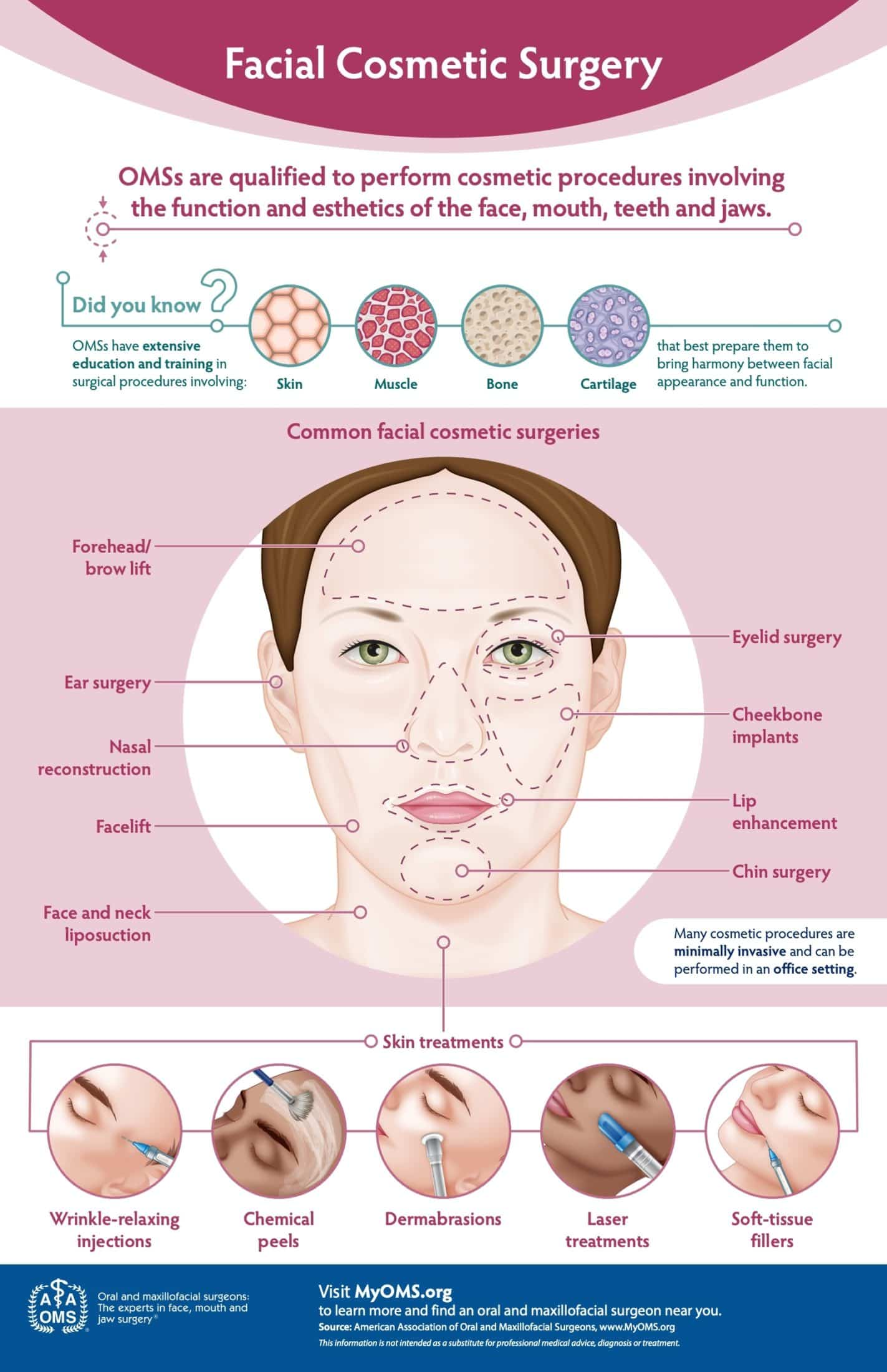 Facial Cosmetic Surgery Infographic