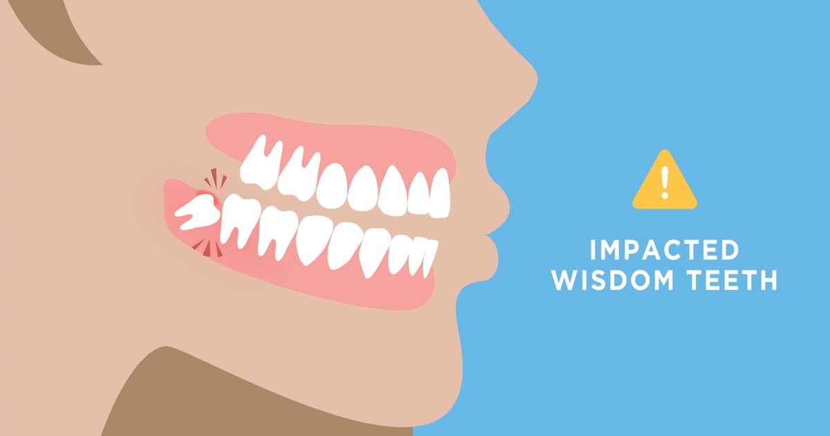 How Long Does It Take To Heal After Wisdom Teeth Removal Aaoms