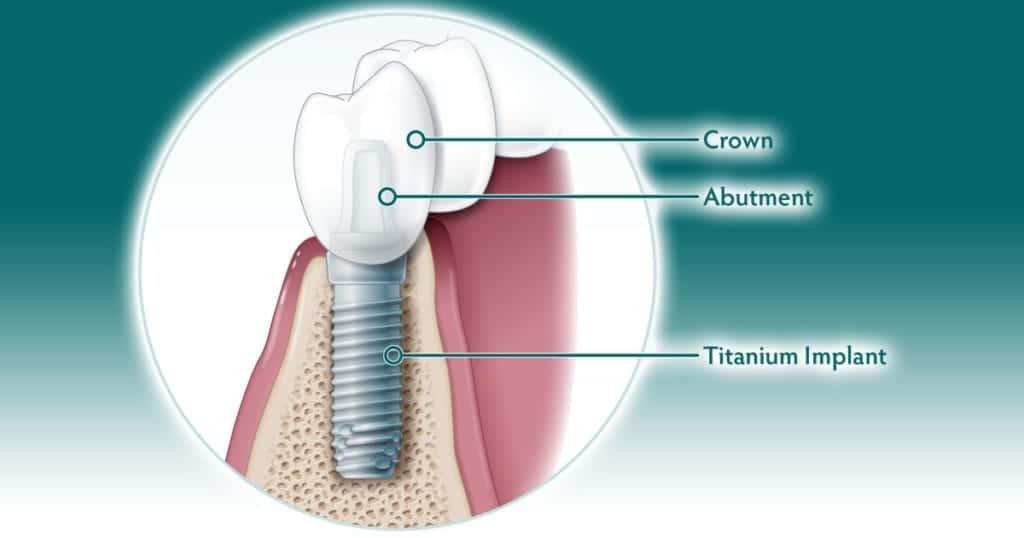 HERO images How do dental implants work 1200x630