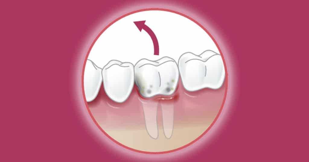 HERO images Tooth extraction 1200x630