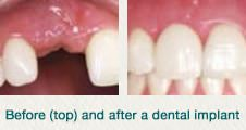xdental implant beforeafter.jpg.pagespeed.ic .06qLmp6kpQ
