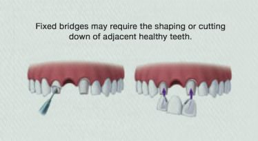 xdental implant1.jpg.pagespeed.ic .iuO3BeX9O9