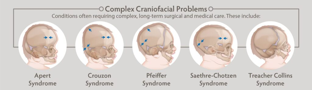 complex craniofacial problems